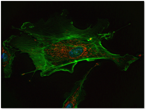 If this endothelial cell were in the body, potassium would be inside it, where various structures are stained blue and red.  Sodium would be outside the cell, where the green filaments are in this picture.